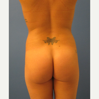 25-34 year old woman treated with Brazilian Butt Lift before 3726111
