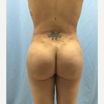 25-34 year old woman treated with Brazilian Butt Lift after 3726111