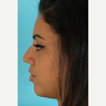 25-34 year old woman treated with Rhinoplasty before 3691332