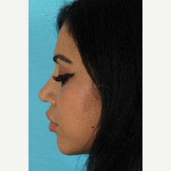 25-34 year old woman treated with Rhinoplasty after 3691332