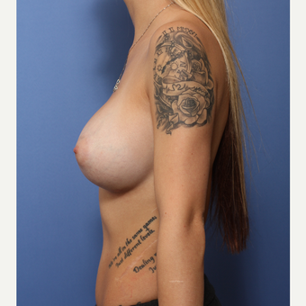 18-24 year old woman treated with Breast Augmentation after 3505963