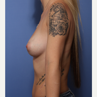 18-24 year old woman treated with Breast Augmentation before 3505963