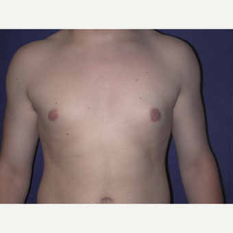35-44 year old man treated with Male Breast Reduction after 3765976