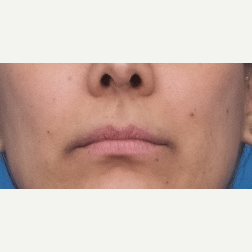 25-34 year old woman treated with Restylane Silk before 3764116