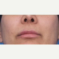 25-34 year old woman treated with Restylane Silk after 3764116