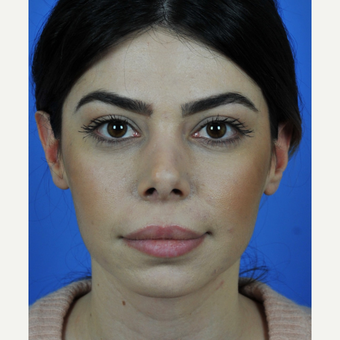 Revision Rhinoplasty Counter Rotation of the Tip before 3011168