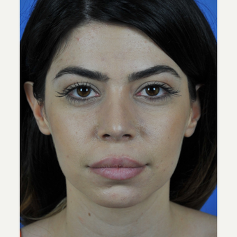 Revision Rhinoplasty Counter Rotation of the Tip after 3011168