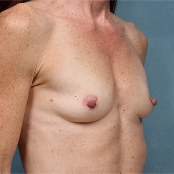 45-54 year old woman treated with Breast Augmentation before 3265157