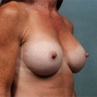 45-54 year old woman treated with Breast Augmentation after 3265157