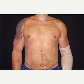 35-44 year old man treated with Smart Lipo after 3645795