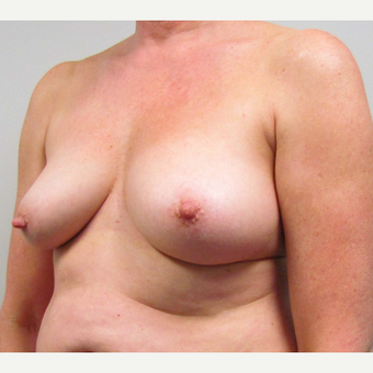 Breast Lift for this 55 Year Old Woman before 3791717