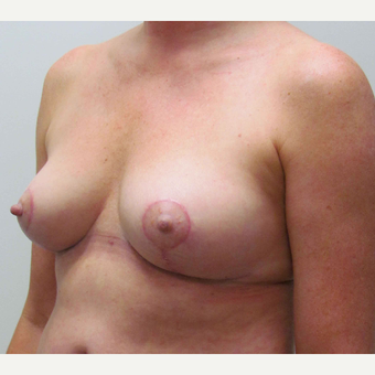 Breast Lift for this 55 Year Old Woman after 3791717