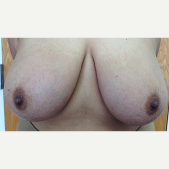 35-44 year old woman treated with Breast Reduction before 3629360