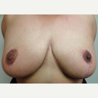 35-44 year old woman treated with Breast Reduction after 3629360