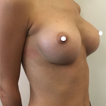 25-34 year old woman treated with Breast Augmentation after 3740644