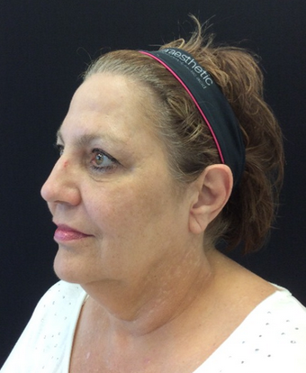 55-64 year old woman treated with Kybella before 2126936