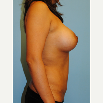 40 year old woman treated with Mommy Makeover, Abdominoplasty and breast augmentation after 3624087
