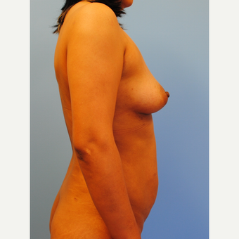 40 year old woman treated with Mommy Makeover, Abdominoplasty and breast augmentation before 3624087