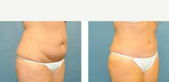 25-34 year old woman treated with Tummy Tuck before 3776526