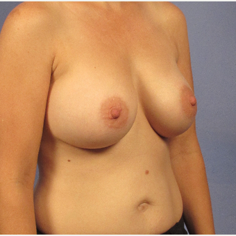 35-44 year old woman treated with Breast Implants after 3106756