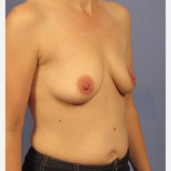35-44 year old woman treated with Breast Implants before 3106756