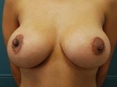 33 Year Old Female Gets Breast Lift after 1237768