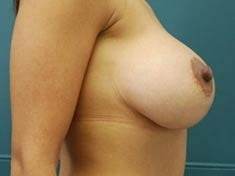33 Year Old Female Gets Breast Lift 1237768