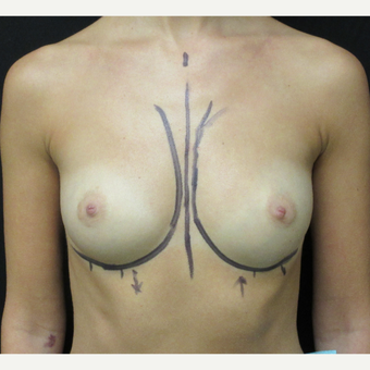 18-24 year old woman treated with Breast Augmentation before 3187739