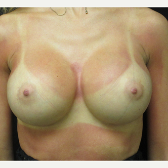 18-24 year old woman treated with Breast Augmentation after 3187739