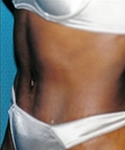 Tummy Tuck after 2099785