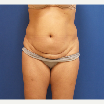 45-54 year old woman treated with Tummy Tuck before 2882896