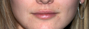 Lip Augmentation - Juvederm after 261422