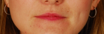 Lip Augmentation - Juvederm before 261422