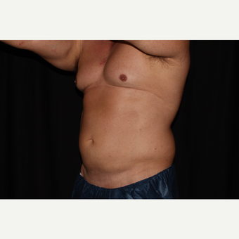 35-44 year old man treated with SculpSure after 3025954