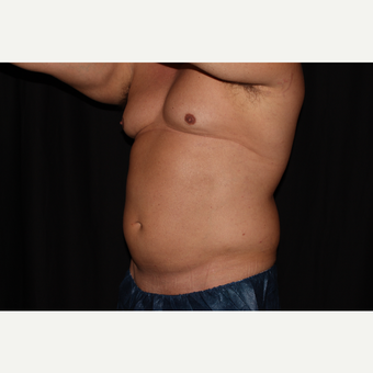 35-44 year old man treated with SculpSure before 3025954