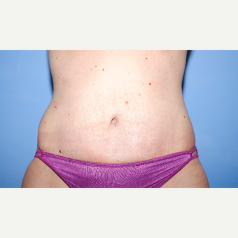 25-34 year old woman treated with Tummy Tuck after 3763363