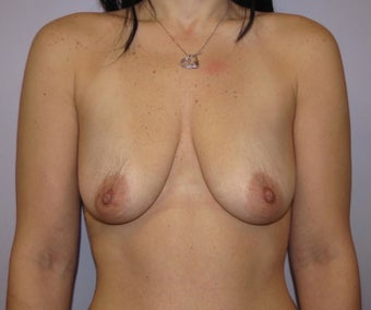 34 year old woman underwent Breast Augmentation with 360 cc high profile saline implants before 3452490