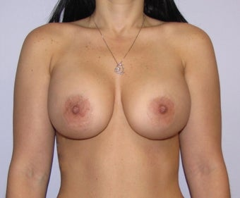 34 year old woman underwent Breast Augmentation with 360 cc high profile saline implants after 3452490