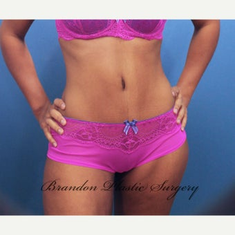 Tummy Tuck after 2526016