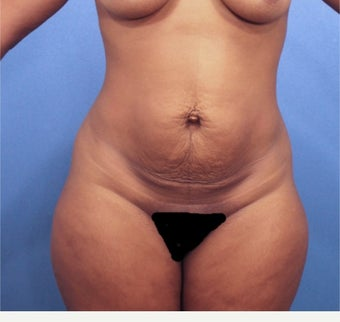 Tummy Tuck before 2526016