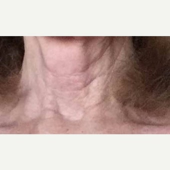 65-74  year old woman treated with Kristine Romine MD Neck Renewal Cream. before 2014644
