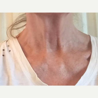65-74  year old woman treated with Kristine Romine MD Neck Renewal Cream. after 2014644