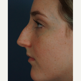 18-24 year old woman treated with Rhinoplasty before 3245055