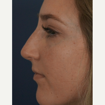 18-24 year old woman treated with Rhinoplasty after 3245055