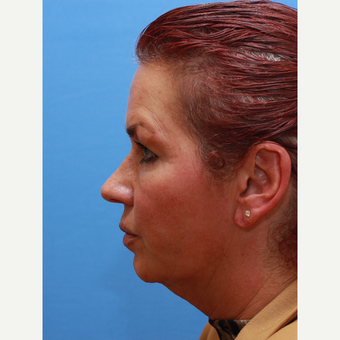 Lady treated with Neck Lift before 3373037