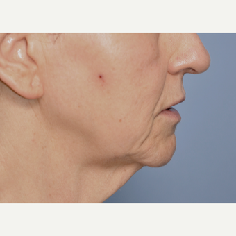 55-64 year old woman treated with Facelift before 3030499