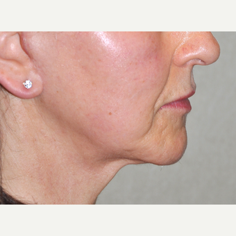 55-64 year old woman treated with Facelift after 3030499