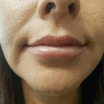 45-54 year old woman treated with Juvederm after 3658411