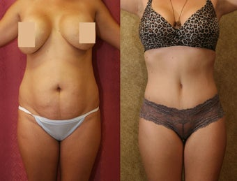 tummy tuck before 307970