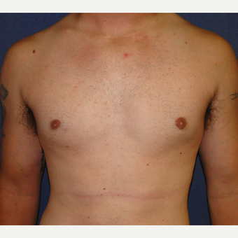 18-24 year old man treated with Male Breast Reduction after 3241111